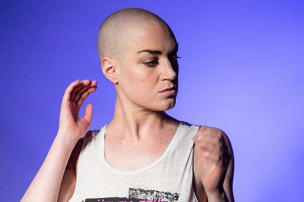 Frau mit rasierten Haaren | Foto: luxstorm, pixabay.com, Pixabay License